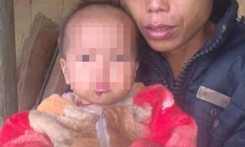 Những bệnh hiếm gặp lần đầu xuất hiện ở Việt Nam