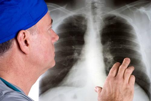 Ung thư phổi gây tử vong số 1 cho đàn ông