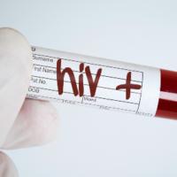 Sắp có văcxin trị HIV