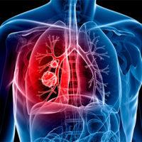 14 dấu hiệu cảnh báo bạn có thể đang bị ung thư phổi