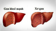 5 dấu hiệu cảnh báo gan đang nhiễm độc, suy yếu